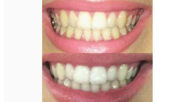 Das Geheimnis für strahlend weiße Zähne