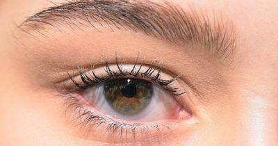 So vermeidest du Augenringe