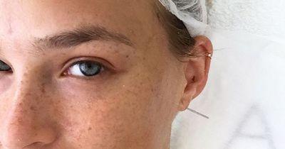 Schöne Haut durch Akupunktur
