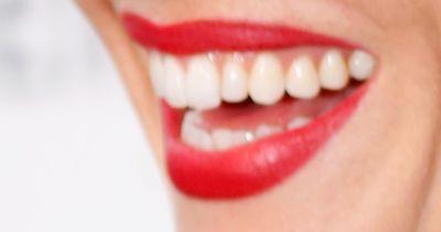 Fünf überraschende Gründe, warum deine Zähne nicht super-weiß sind!