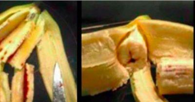 Kind kommt in die Notaufnahme, weil es Flecken-Banane gegessen hat